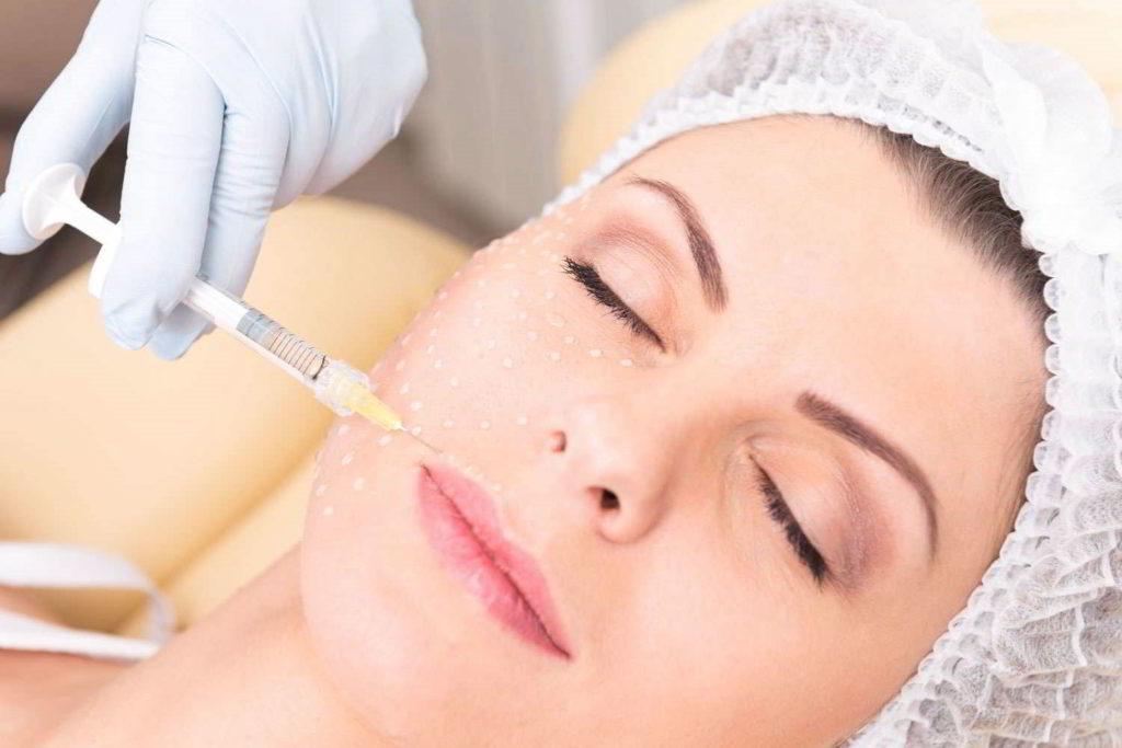 Iniezioni di acido ialuronico viso